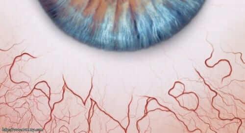 עיניים אדומות