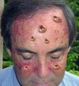 סרטן העור
