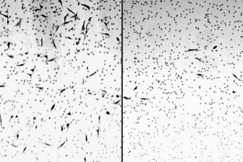 תאים סרטניים נעלמים לאחר שימוש בקנאביס