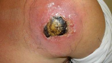 Photo of קנאביס כאנטיביוטיקה: יעיל לטיפול בדלקות, הרפס ו-MRSA