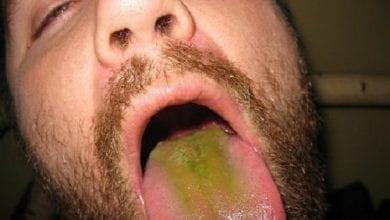Photo of הלשון שלך ירוקה? חשד סביר שעישנת מריחואנה