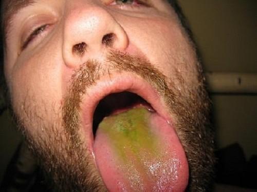 לשון ירוקה