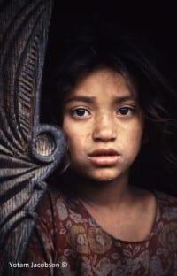 ילדה מלאנית