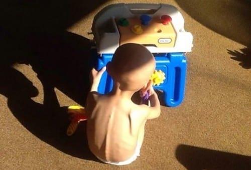 לנדון - בן 3 חולה סרטן ומטופל בקנאביס