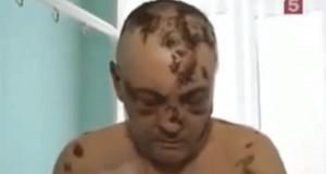 קרוקודיל - הסם המסוכן בעולם