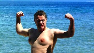 גינקומסטיה - צמיחת שדיים אצל גברים