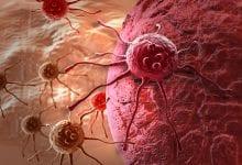 Photo of מחקר חדש: קנאביס לטיפול בסרטן המעי הגס