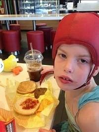 ילד חולה אפילפסיה