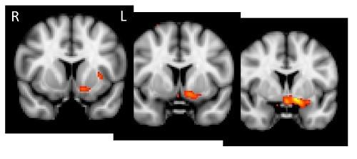 מחקר מוח מריחואנה