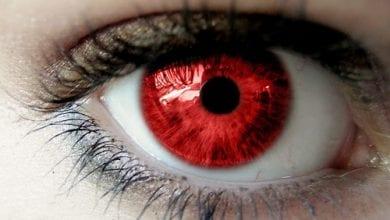 Photo of עיניים אדומות: מדוע קנאביס גורם להן ומה עושים בקשר לזה