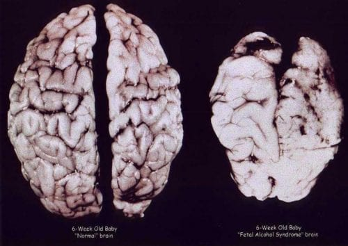 מוח של תינוק רגיל בן 6 שבועות (שמאל) ומוח של תינוק עם תסמונת אלכוהול עוברית בגיל 6 שבועות (ימין)