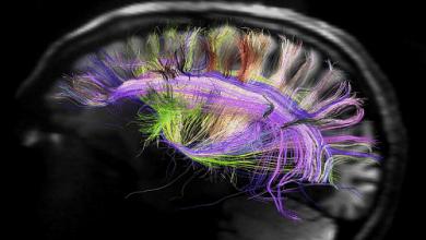 Photo of מחקר חדש: מריחואנה לא גורמת לנזק מוחי