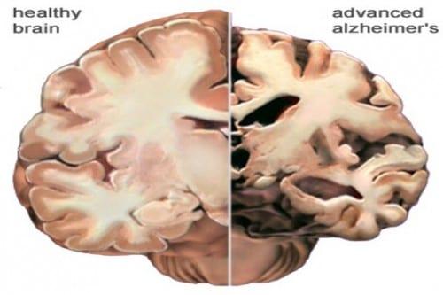 מוח בריא לעומת מוח בשלב מתקדם של אלצהיימר