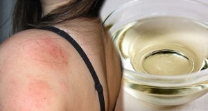 צלוחית שמן - דרמטיטיס (דלקת עור)