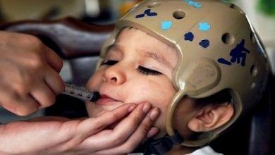 ילד חולה אפילפסיה המטופל בטיפות קנאביס (CBD)