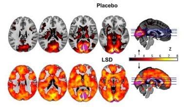 Photo of מחקר מצא: כך נראה המוח תחת טריפ LSD