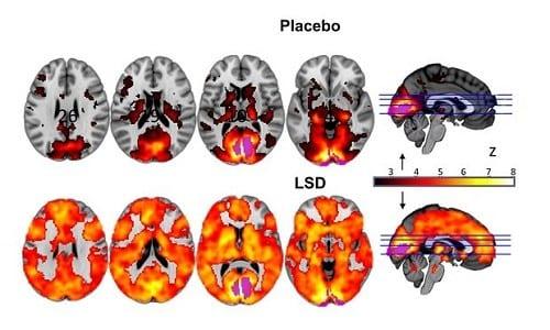 """תחת השפעת ה-LSD, המוח האנושי מראה פעילות מוגברת של עשרות אחוזים לעומת המצב הרגיל. (מחקר חדש מראה: כך נראה """"טריפ"""" LSD במוח)"""