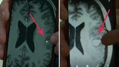 Photo of מחקר ישראלי חדש מצא שקנאביס הורג תאים סרטניים