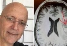 "Photo of ""ניצלתי בזכות הקנאביס"": כך החלים צוללן השייטת מגידול סרטני במוחו"