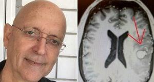 יהודה הבר והגידול הסרטני במוח