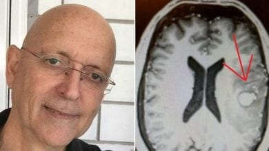 Yehuda Haber and the brain tumor
