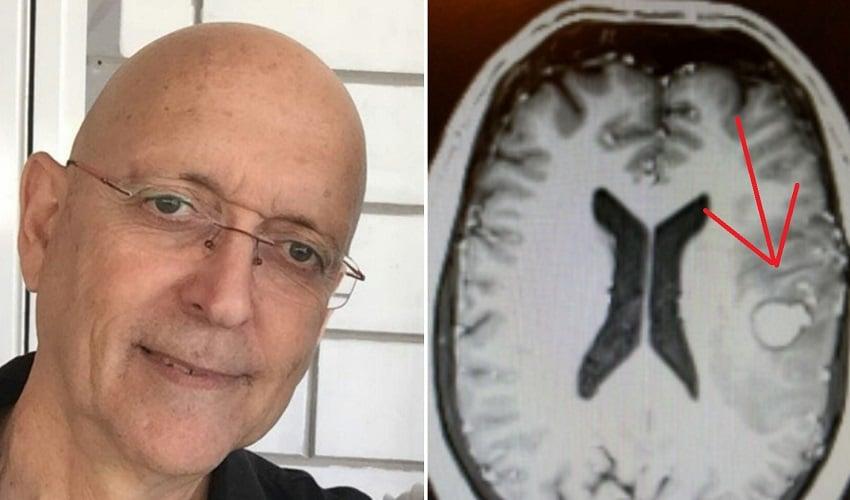 """""""ניצלתי בזכות הקנאביס"""": כך החלים צוללן השייטת מגידול סרטני במוחו"""