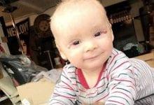 Un bebé se aplica con aceite de cannabis