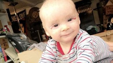 Photo of לפני ואחרי: תינוק עם מחלת עור נדירה החלים בעזרת משחת קנאביס