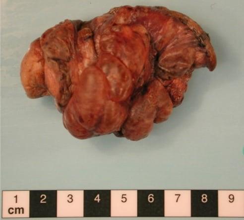 Een massa schimmelinfectie werd uit de longen verwijderd van een man die regelmatig cannabis rookte die met Aspergillus was geïnfecteerd. Bron: Nationaal centrum voor Aspergillose in het VK