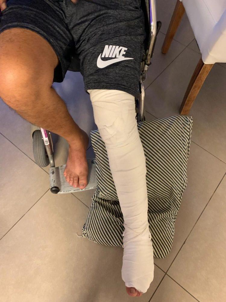 רגל שבורה מגובסת של מטופל קנאביס רפואי