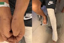Photo of שוטרים שברו את רגלו של מטופל קנאביס רפואי במעצר