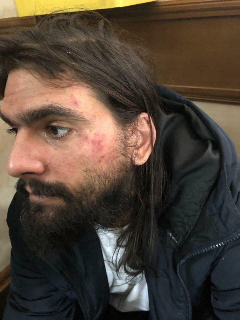 עמוס סילבר לאחר מעצרו באלימות