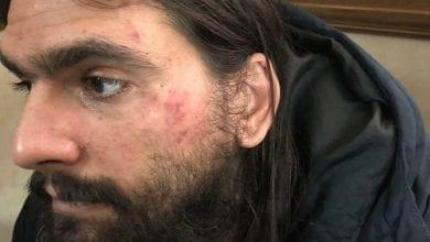 Photo of עמוס סילבר נלכד באומן: חשד ששיחד שוטרים. נעצר באלימות